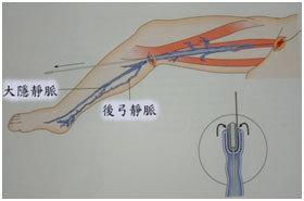 大隱靜脈摘取術